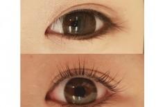 目が大きくなりたい方